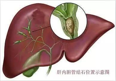 肝内胆管结石示意图